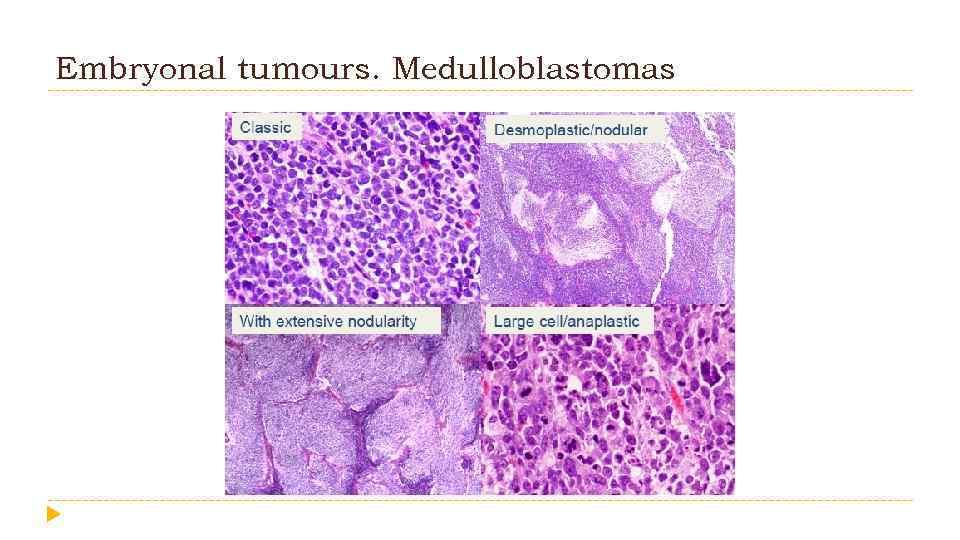 Embryonal tumours. Medulloblastomas