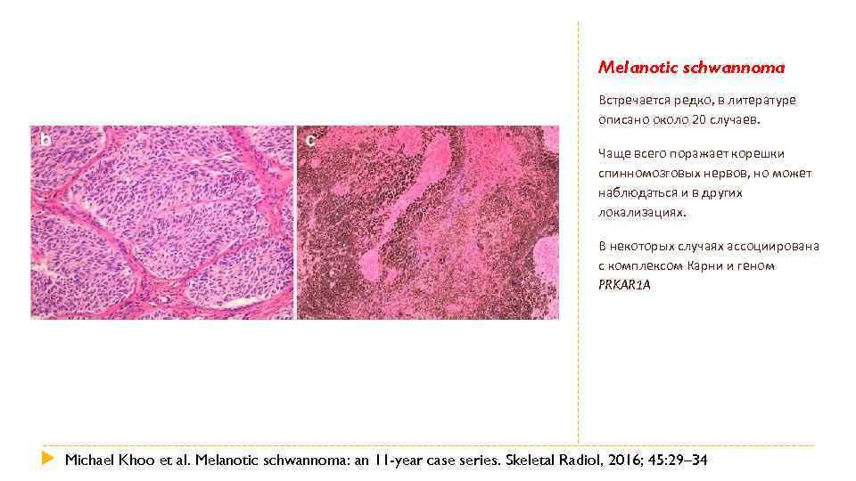 Melanotic schwannoma Встречается редко, в литературе описано около 20 случаев. Чаще всего поражает корешки