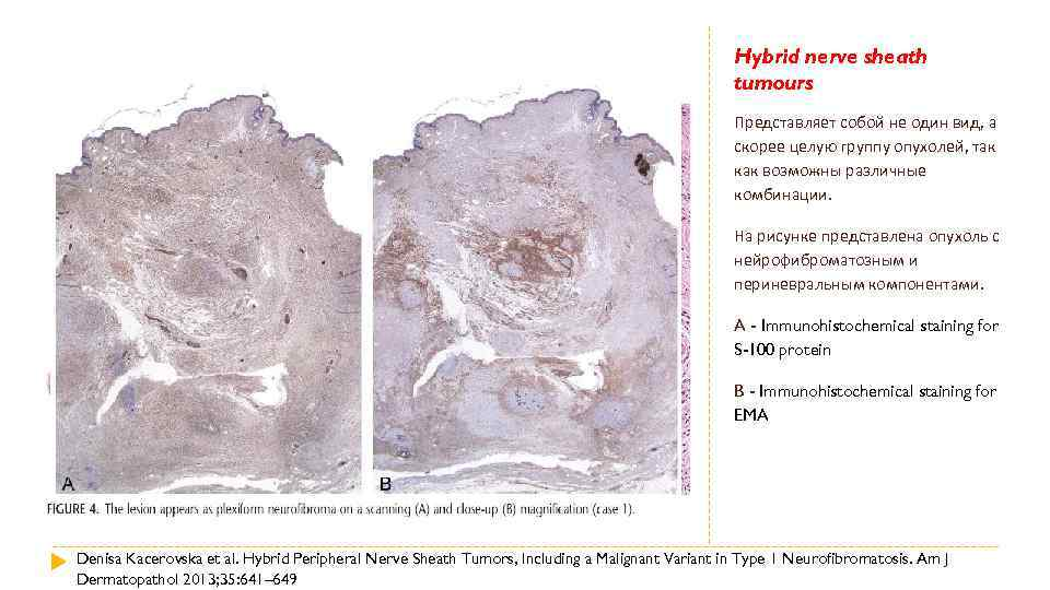 Hybrid nerve sheath tumours Представляет собой не один вид, а скорее целую группу опухолей,