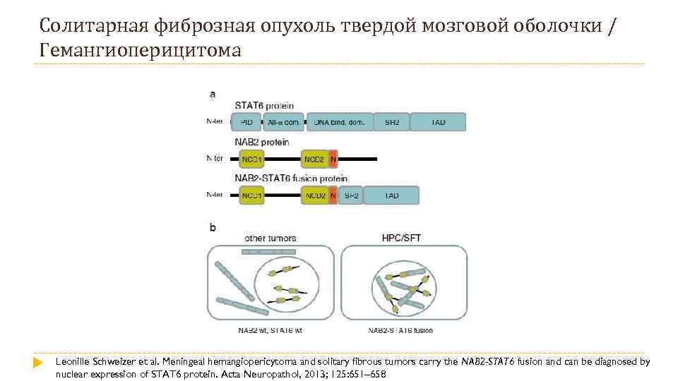 Солитарная фиброзная опухоль твердой мозговой оболочки / Гемангиоперицитома Leonille Schweizer et al. Meningeal hemangiopericytoma