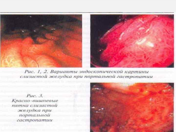 Лекции по циррозам печени