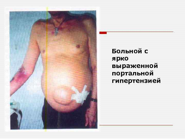Больной с ярко выраженной портальной гипертензией