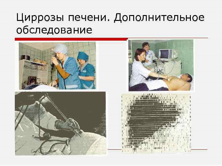 Циррозы печени. Дополнительное обследование