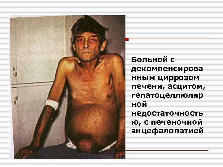 Больной с декомпенсирова нным циррозом печени, асцитом, гепатоцеллюляр ной недостаточность ю, с печеночной энцефалопатией