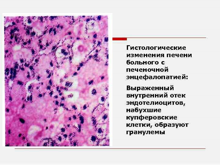 Гистологические изменения печени больного с печеночной энцефалопатией: Выраженный внутренний отек эндотелиоцитов, набухшие купферовские клетки,