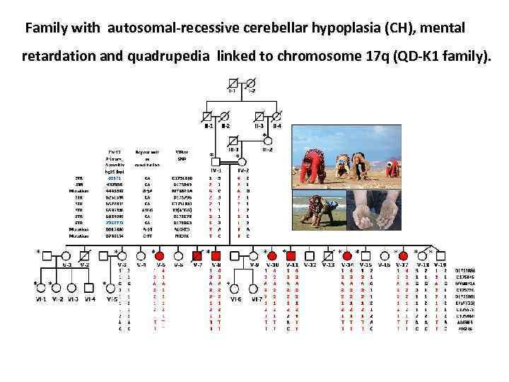 Family with autosomal-recessive cerebellar hypoplasia (CH), mental retardation and quadrupedia linked to chromosome 17