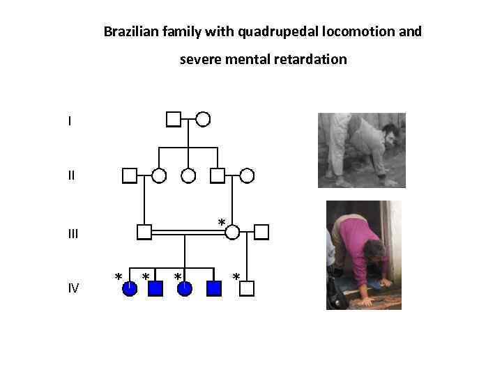 Brazilian family with quadrupedal locomotion and severe mental retardation I II IV * *