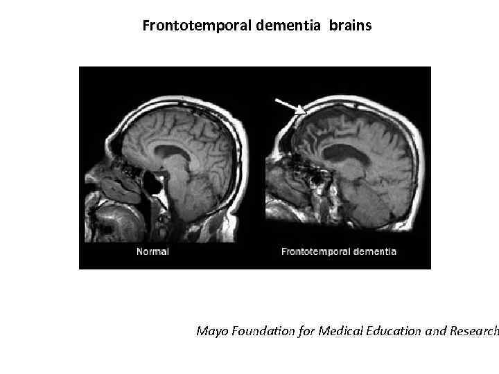 Frontotemporal dementia brains Mayo Foundation for Medical Education and Research