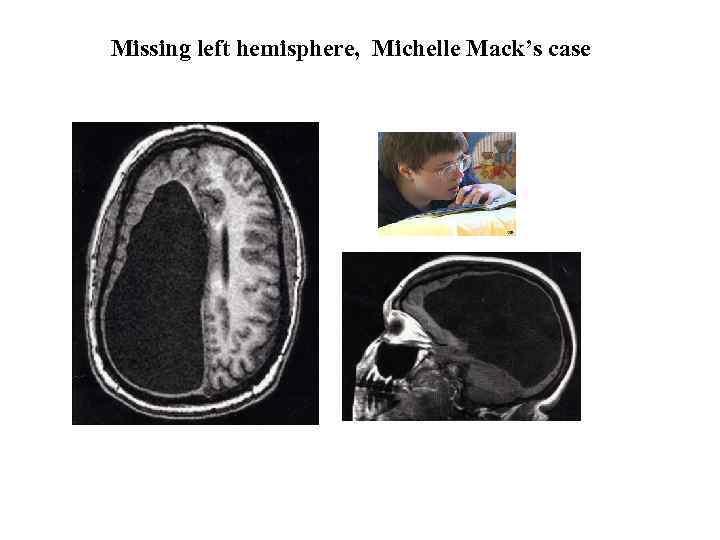 Missing left hemisphere, Michelle Mack's case