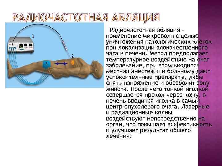 Радиочастотная абляция – применение микроволн с целью уничтожения патологических клеток при локализации злокачественного