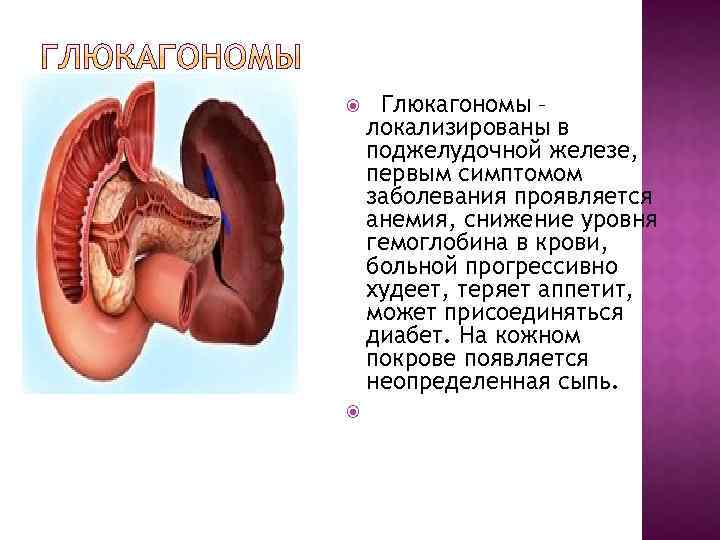 Глюкагономы – локализированы в поджелудочной железе, первым симптомом заболевания проявляется анемия, снижение уровня