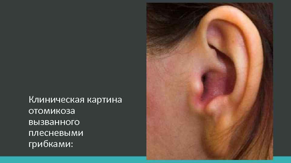 Клиническая картина отомикоза вызванного плесневыми грибками: