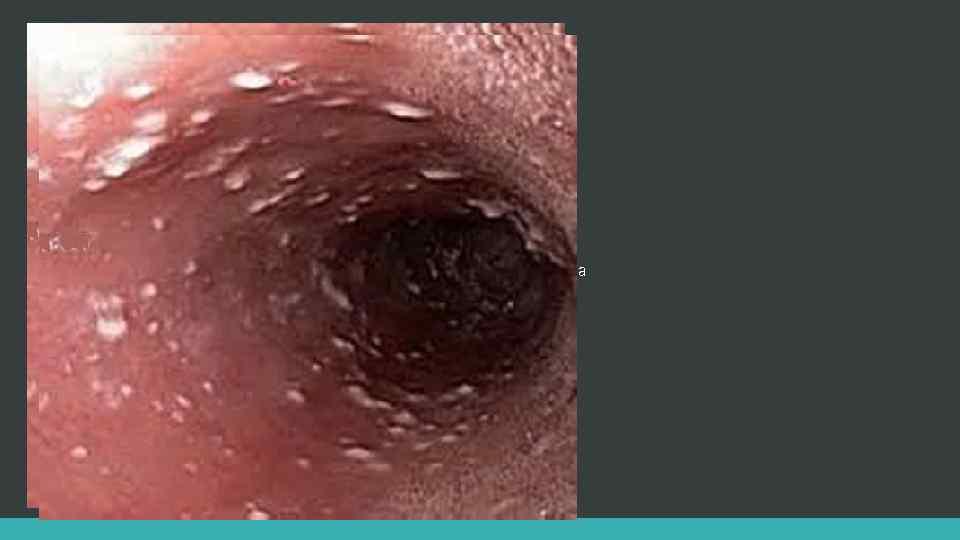 дерматитами наружного уха