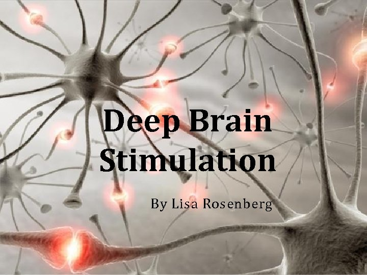 Deep Brain Stimulation By Lisa Rosenberg