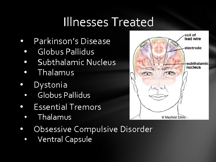 Illnesses Treated Parkinson's Disease • Globus Pallidus • Subthalamic Nucleus • Thalamus • Dystonia