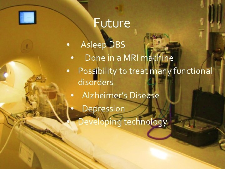 Future • • • Asleep DBS Done in a MRI machine Possibility to treat