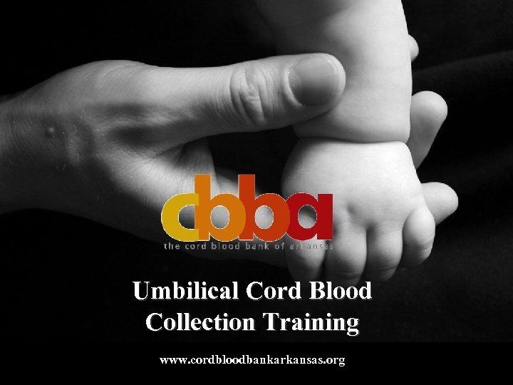 Umbilical Cord Blood Collection Training www. cordbloodbankarkansas. org