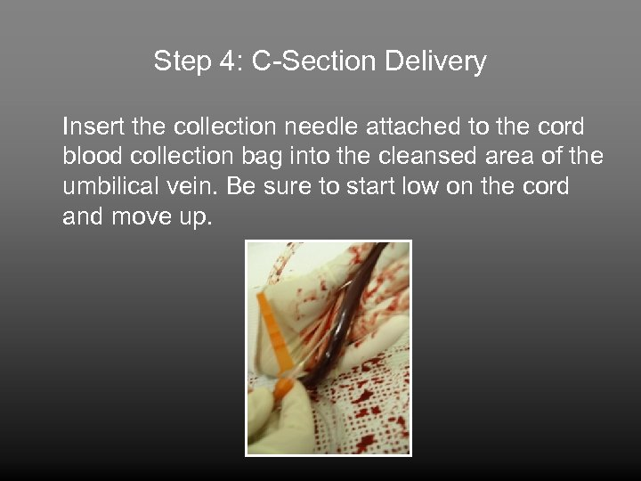 Step 4: C-Section Delivery Insert the collection needle attached to the cord blood collection