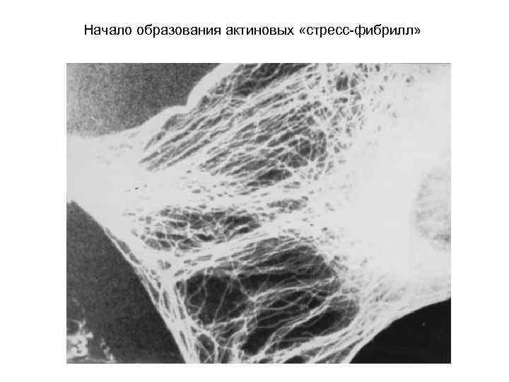 Начало образования актиновых «стресс-фибрилл»