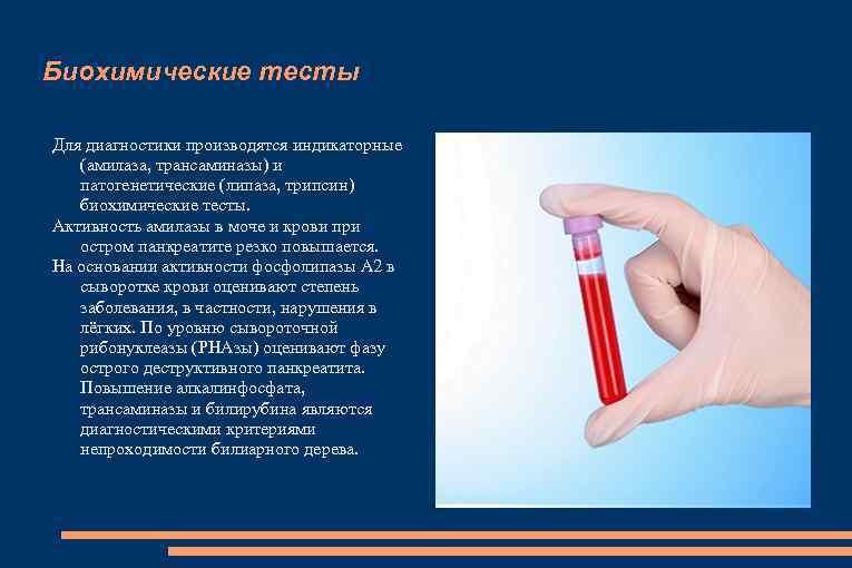 Биохимические тесты Для диагностики производятся индикаторные (амилаза, трансаминазы) и патогенетические (липаза, трипсин) биохимические тесты.