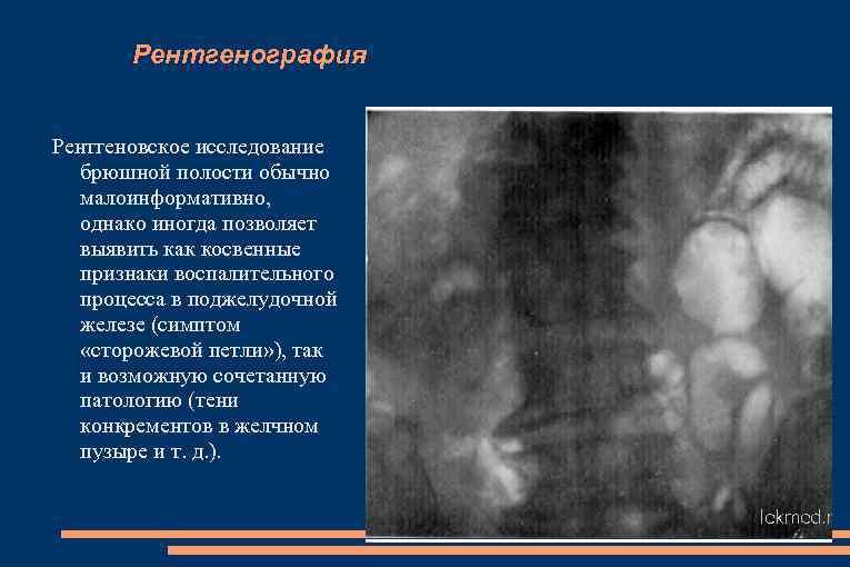 Рентгенография Рентгеновское исследование брюшной полости обычно малоинформативно, однако иногда позволяет выявить как косвенные признаки