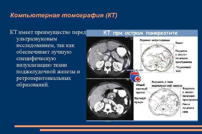 Компьютерная томография (КТ) КТ имеет преимущество перед ультразвуковым исследованием, так как обеспечивает лучшую специфическую