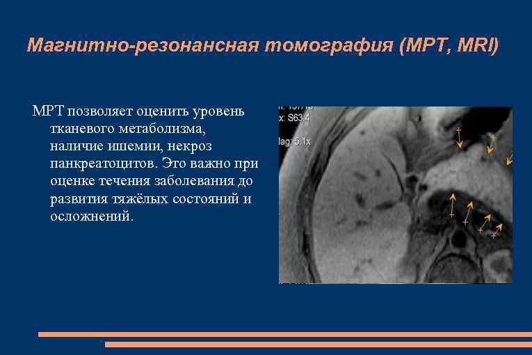 Магнитно-резонансная томография (МРТ, MRI) МРТ позволяет оценить уровень тканевого метаболизма, наличие ишемии, некроз панкреатоцитов.