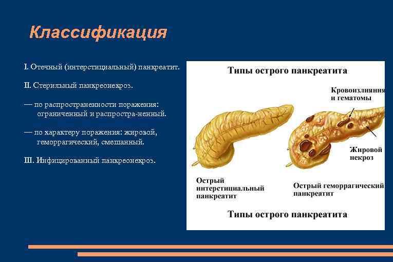 Классификация I. Отечный (интерстициальный) панкреатит. II. Стерильный панкреонекроз. — по распространенности поражения: ограниченный и