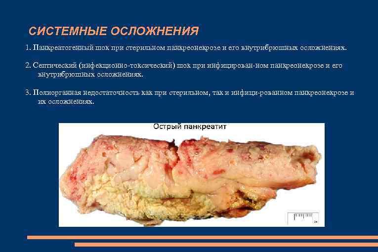 СИСТЕМНЫЕ ОСЛОЖНЕНИЯ 1. Панкреатогенный шок при стерильном панкреонекрозе и его внутрибрюшных осложнениях. 2. Септический