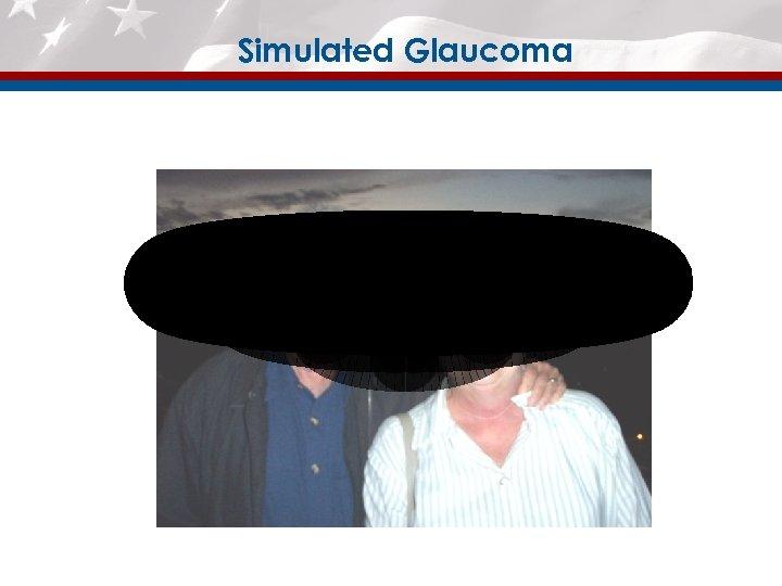 Simulated Glaucoma