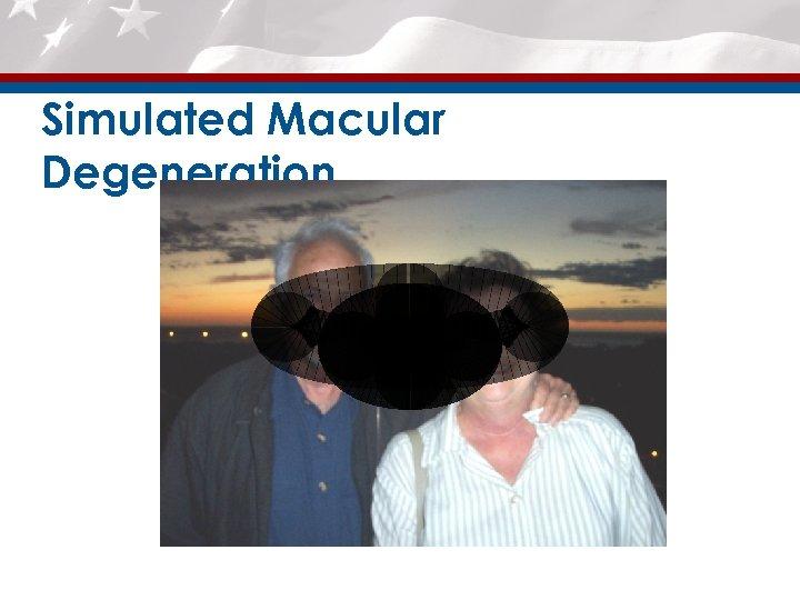Simulated Macular Degeneration