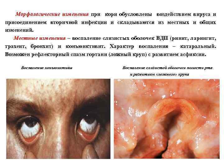 Морфологические изменения при кори обусловлены воздействием вируса и присоединением вторичной инфекции и складываются