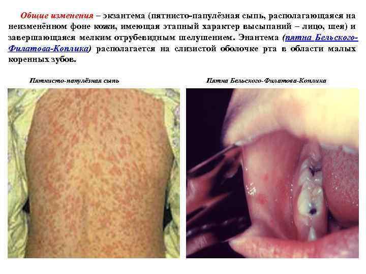 Общие изменения – экзантема (пятнисто папулёзная сыпь, располагающаяся на неизменённом фоне кожи, имеющая