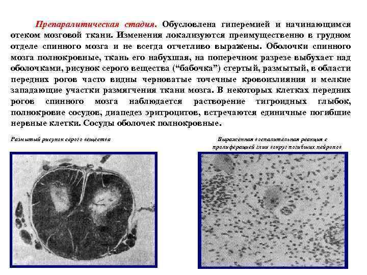 Препаралитическая стадия. Обусловлена гиперемией и начинающимся отеком мозговой ткани. Изменения локализуются преимущественно в