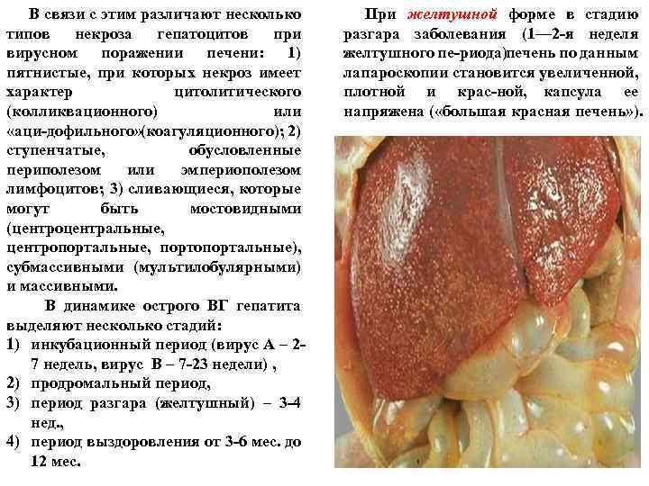 В связи с этим различают несколько типов некроза гепатоцитов при вирусном поражении печени: