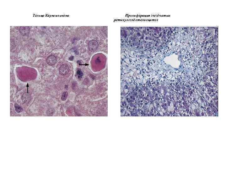 Тельца Каунсильмена Пролиферация звездчатых ретикулоэндотелиоцитов