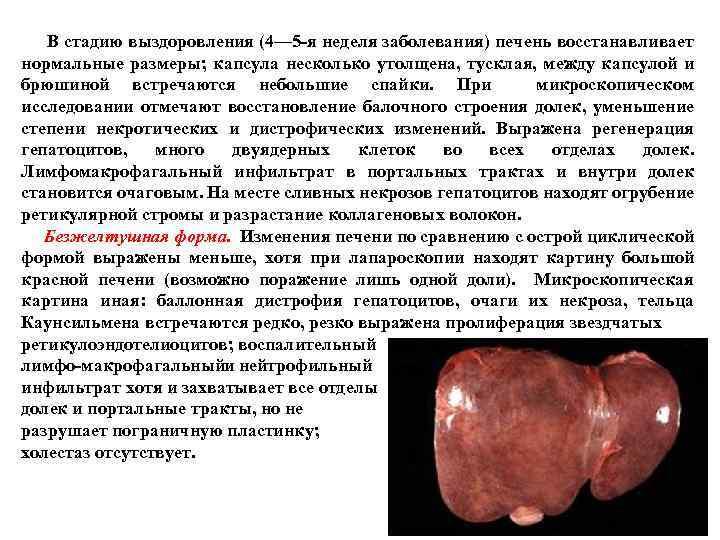 В стадию выздоровления (4— 5 я неделя заболевания) печень восстанавливает нормальные размеры; капсула
