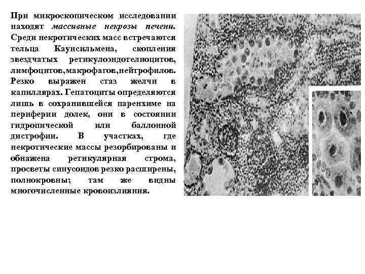 При микроскопическом исследовании находят массивные некрозы печени. Среди некротических масс встречаются тельца Каунсильмена, скопления