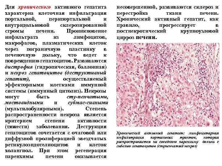 Для хронического активного гепатита характерна клеточная инфильтрация портальной, перипортальной и внутридольковой склерозированной стромы печени.