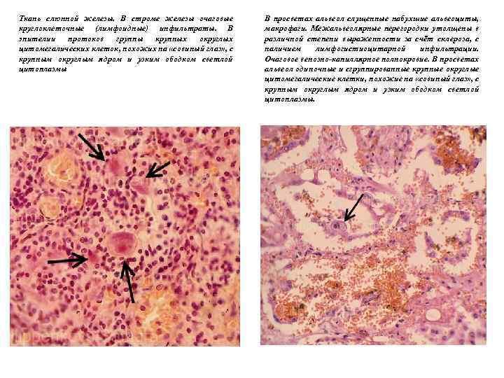 Ткань слюнной железы. В строме железы очаговые круглоклеточные (лимфоидные) инфильтраты. В эпителии протоков группы