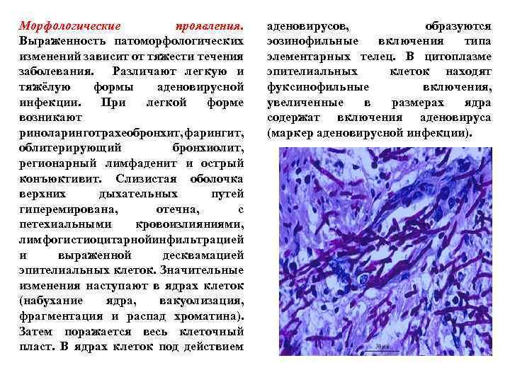 Морфологические проявления. Выраженность патоморфологических изменений зависит от тяжести течения заболевания. Различают легкую и тяжёлую