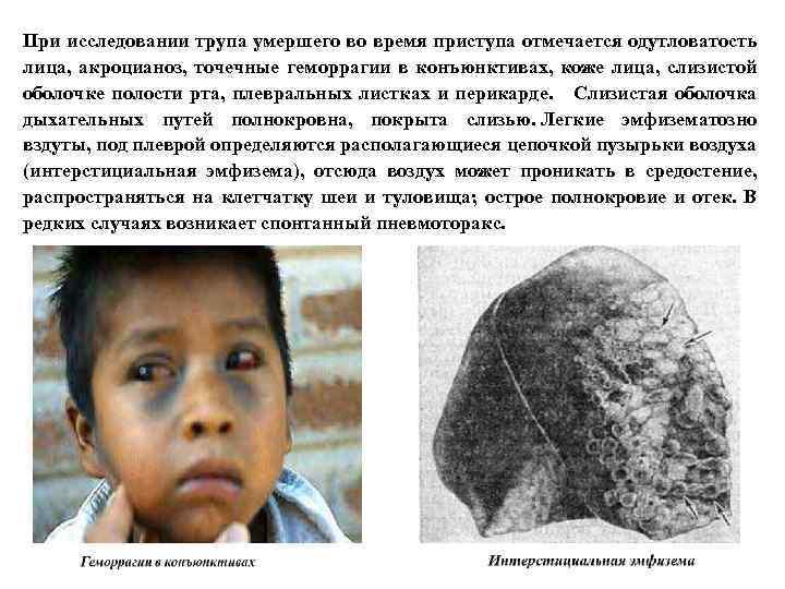 При исследовании трупа умершего во время приступа отмечается одутловатость лица, акроцианоз, точечные геморрагии в