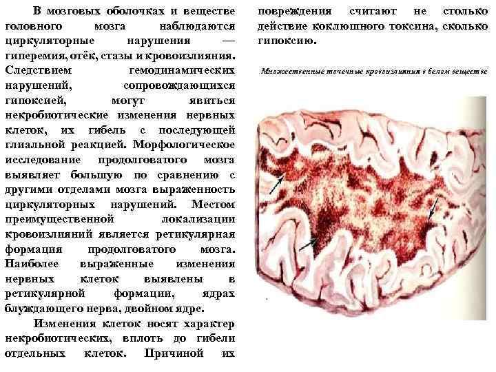 В мозговых оболочках и веществе головного мозга наблюдаются циркуляторные нарушения — гиперемия, отёк,