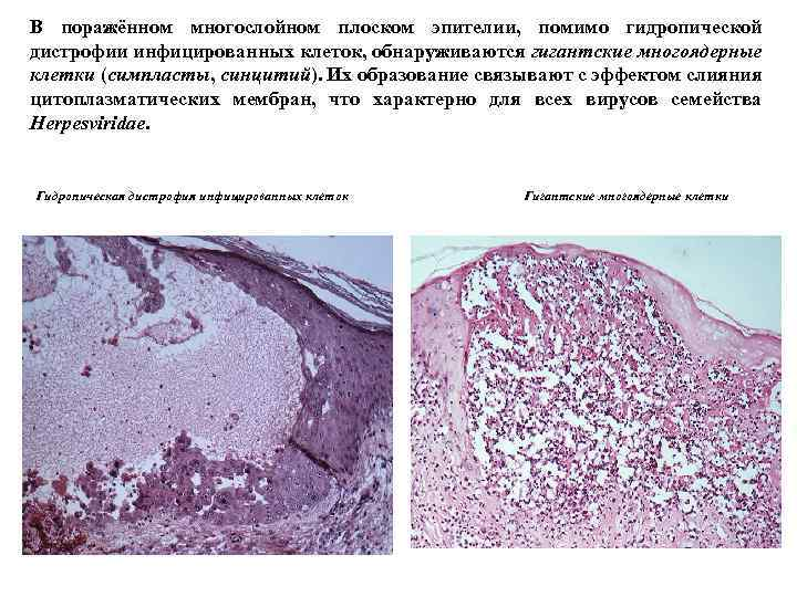 В поражённом многослойном плоском эпителии, помимо гидропической дистрофии инфицированных клеток, обнаруживаются гигантские многоядерные клетки