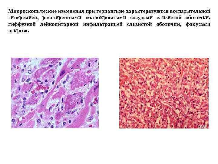 Микроскопические изменения при герпангине характеризуются воспалительной гиперемией, расширенными полнокровными сосудами слизистой оболочки, диффузной лейкоцитарной