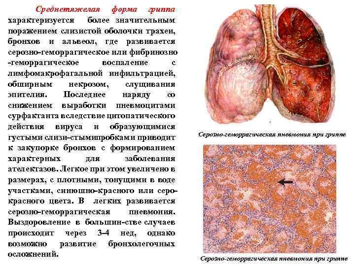Среднетяжелая форма гриппа характеризуется более значительным поражением слизистой оболочки трахеи, бронхов и альвеол,