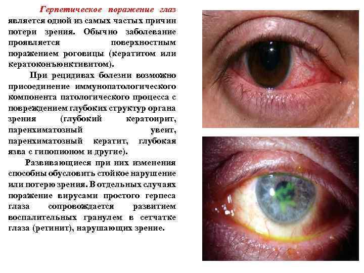 Герпетическое поражение глаз является одной из самых частых причин потери зрения. Обычно заболевание