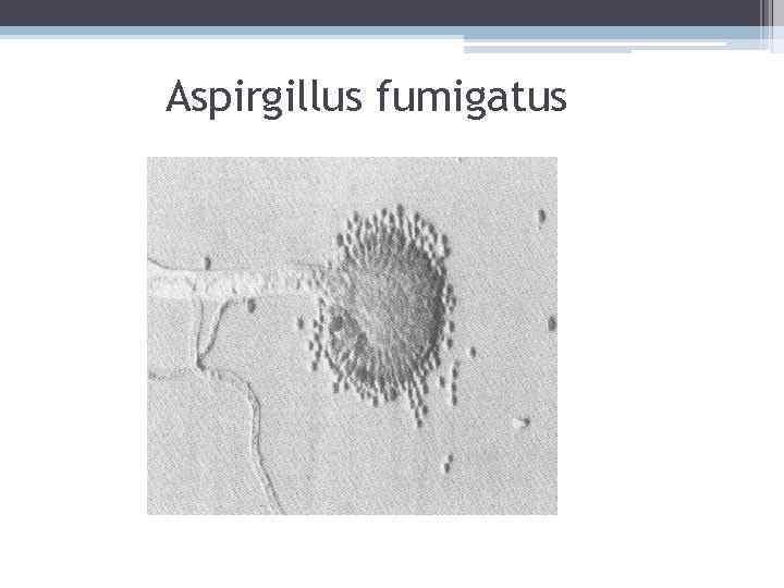 Aspirgillus fumigatus