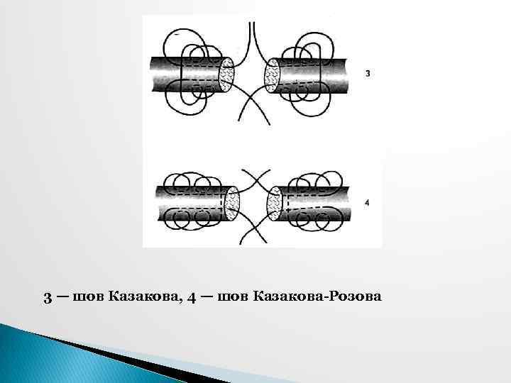 3 — шов Казакова, 4 — шов Казакова-Розова