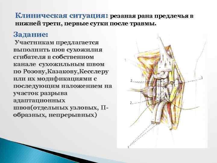 Клиническая ситуация: резаная рана предлечья в нижней трети, первые сутки после травмы. Задание: Участникам